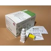 COVID-19 IgM / IgG Rapid Test